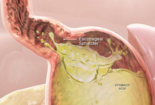 Чем лечить эзофагит в домашних условиях