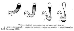 Атония и гипотония желудка