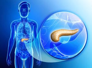 Диагностика панкреатита у взрослых