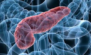 Как лечить острый панкреатит: методы и схемы