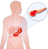 Причины и характеристика острого панкреатита