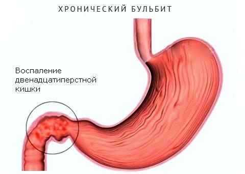 воспаление 12-перстной кишки