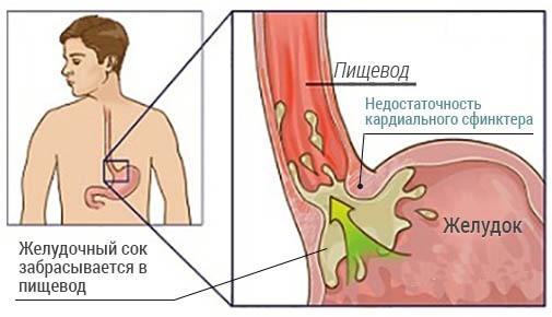развитие кардиального жома
