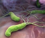 вылечить Хеликобактер Пилори без антибиотиков
