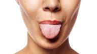 глоссалгия языка