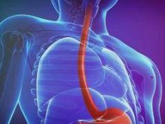 Почему возникает кардиоспазм пищевода и как его устранить?