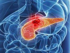 Цистаденокарцинома поджелудочной железы: особенности течения и прогноз заболевания