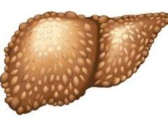 Эхинококкоз печени: причины, симптомы и методы терапии паразитарной инфекции