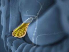 Холестероз желчного пузыря: особенности и методы терапии болезни
