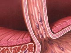 Чем опасно варикозное расширение вен пищевода?
