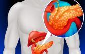 Виды и формы панкреатита: классификация заболевания