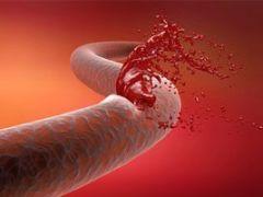 Гастродуоденальные кровотечения: симптомы и опасность