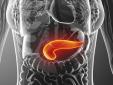 Панкреатит у женщин и при беременности: признаки и лечение