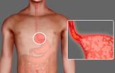 ГЭРБ, или рефлюксная болезнь: симптомы и диагностика