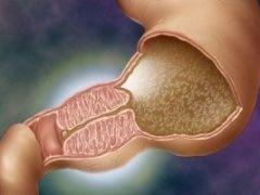 Как проявляется и лечится стеноз привратника желудка на разных стадиях?