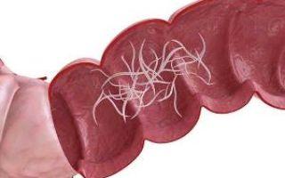 Как распознать энтеробиоз у детей: главные симптомы заражения острицами