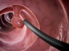 Чем опасен полип пищевода: методы лечения полипоза