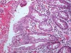 Признаки и методы лечения кишечной метаплазии желудка