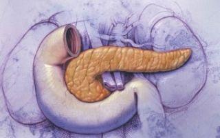 Стеатоз поджелудочной железы: можно ли вылечить болезнь?
