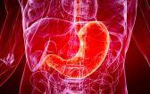 Острый гастрит желудка: причины, симптомы и методы лечения