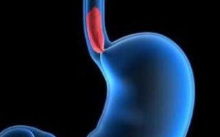 Ахалазия пищевода: как распознать болезнь на ранней стадии?