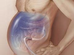 Водянка живота: как остановить патологический процесс?