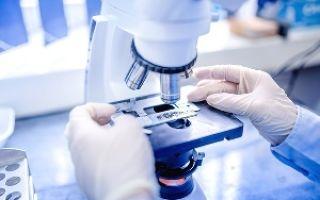 Анализ на энтеробиоз: как сдавать мазок правильно?