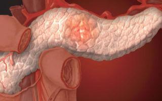 Профилактика панкреатита и физические нагрузки при заболевании
