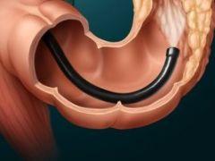 Ректосигмоскопия кишечника: важные нюансы проведения процедуры