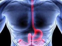 Что такое стриктура пищевода и как она проявляется?