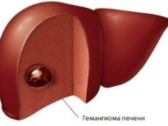 Гемангиома печени: причины, симптоматика, лечение и возможные осложнения