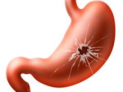 Перфорация язвы желудка – патология, угрожающая жизни