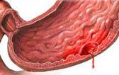 Кровотечение при язве желудка: что делать при обострении