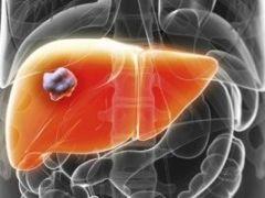 Гепатобластома печени: признаки развития заболевания у детей