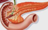 Реактивный панкреатит у взрослых: признаки и методы лечения