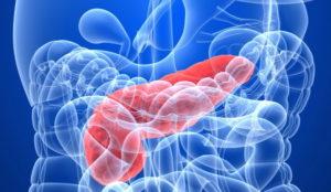 Заболевание хронический панкреатит