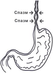 Дискинезия пищевода: симптомы