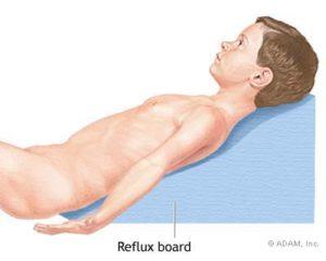 Рефлюксная болезнь: методы лечения