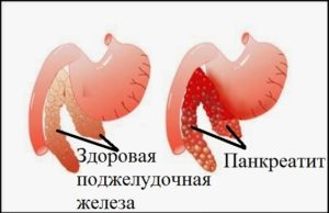 Диагностика хронического панкреатита