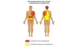 Боли при хроническом и остром панкреатите
