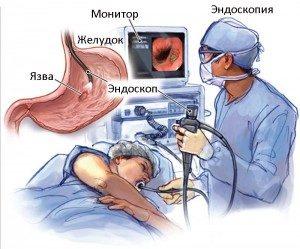 Диагностика язвенной болезни желудка