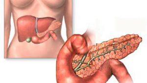 Хронический панкреатит у женщин