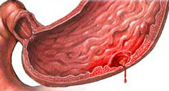 Кровотечение при язве желудка