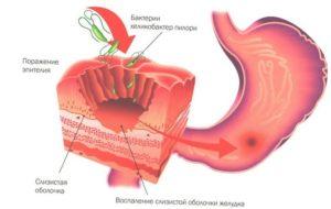 Как вылечить гастрит желудка: причины болезни
