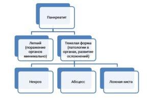 Классификация острого панкреатита: виды заболевания