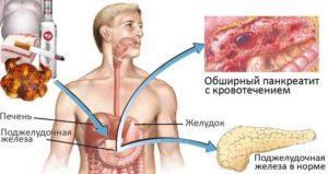 Как лечить панкреатит: методы
