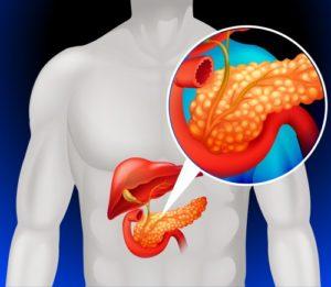 Виды и формы панкреатита