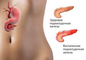 Причины панкреатита у женщин