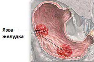 Локализация боли при язве желудка