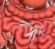 спаечная болезнь кишечника